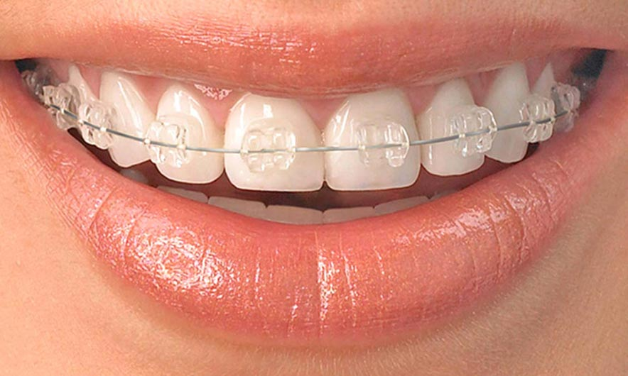 Short term orthodontics training with Quick Straight Teeth