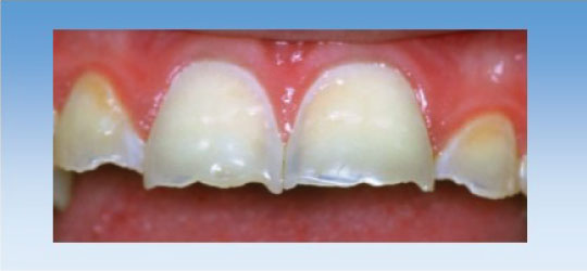 Deciphering toothwear and dental erosion at The Worn Dentition