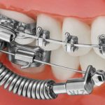Jasper Vektor Class II C erector Appliance from TP Orthodontics.