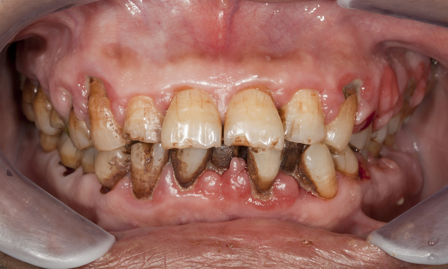Research Finds Byproducts From Gum Disease Incite Oral Cancer Growth