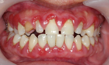 Plant-made antimicrobial peptide targets dental plaque and gum tissues
