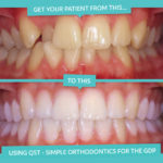 short term orthodontics