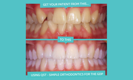 Learn short term orthodontics in 2017 with QST