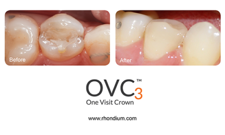 One Visit Crown – Live online training course