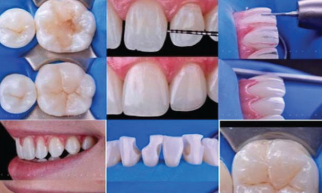 Composite Workshop – Byron Dental Events