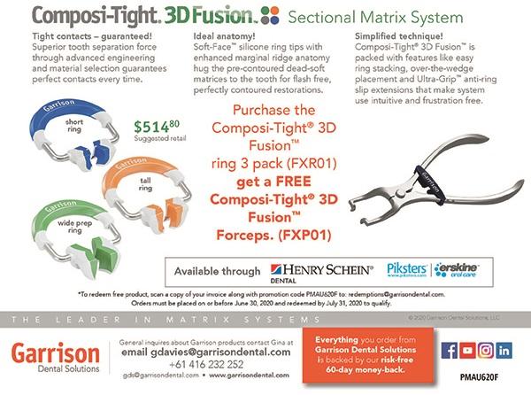 3d fusion