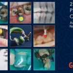 Garrison Dental 2020-21 Product Catalog – Australia and New Zealand